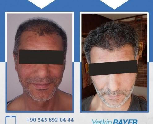 Haartransplantation: Vorher-Nachher-Bilder & Erfahrungen 5