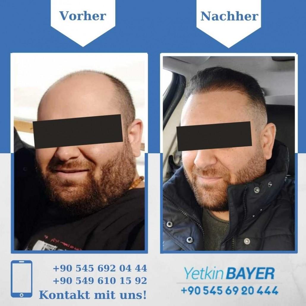 Haartransplantation Türkei Vorher Nachher Ergebnisse 36