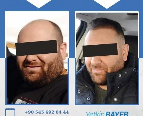 Haartransplantation: Vorher-Nachher-Bilder & Erfahrungen 6