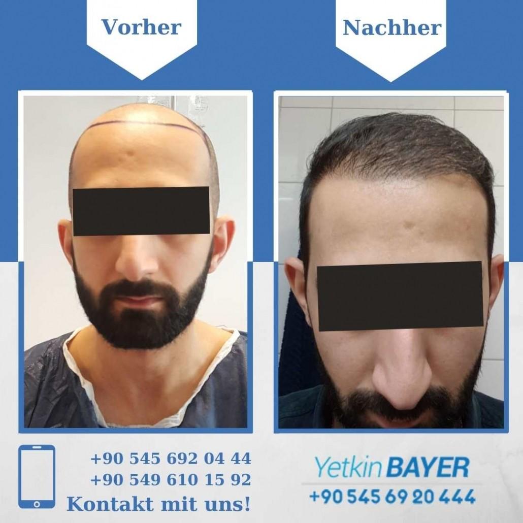 Haartransplantation Türkei Vorher Nachher Ergebnisse 32