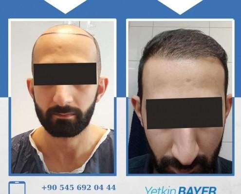 Haartransplantation: Vorher-Nachher-Bilder & Erfahrungen 7
