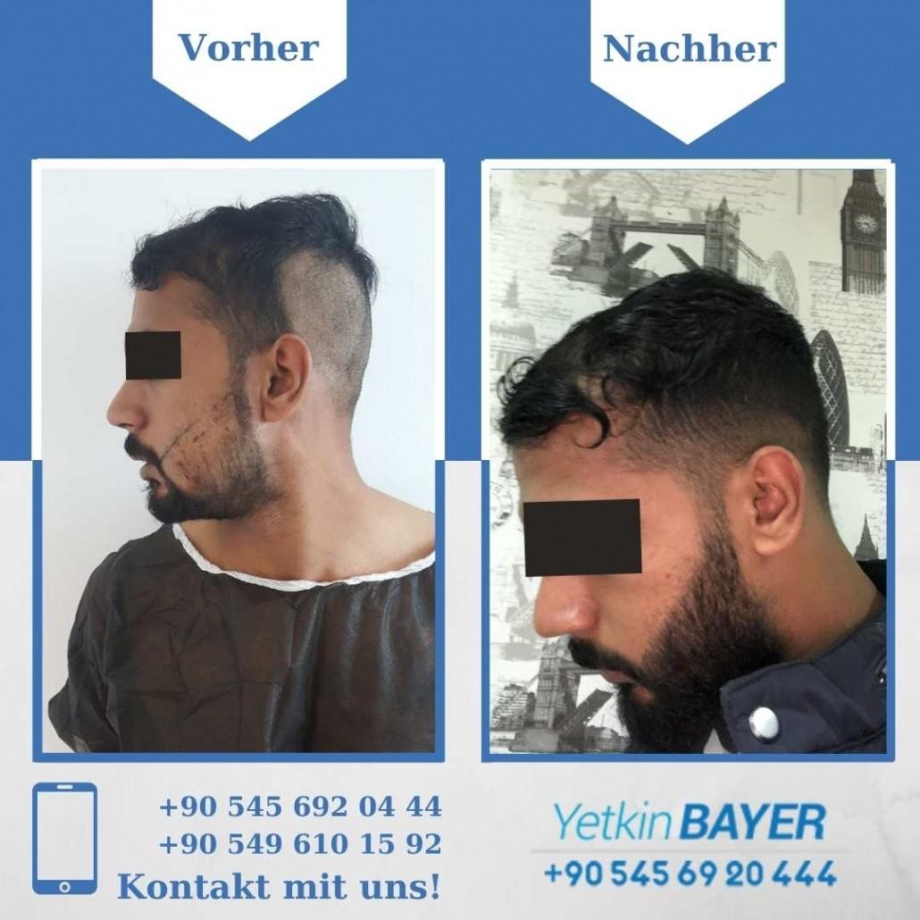 Haartransplantation Türkei Vorher Nachher Ergebnisse 33