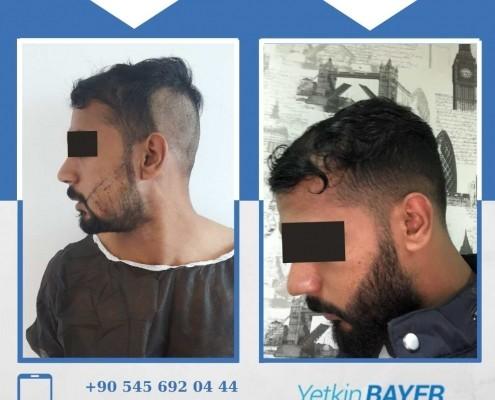 Haartransplantation: Vorher-Nachher-Bilder & Erfahrungen 8
