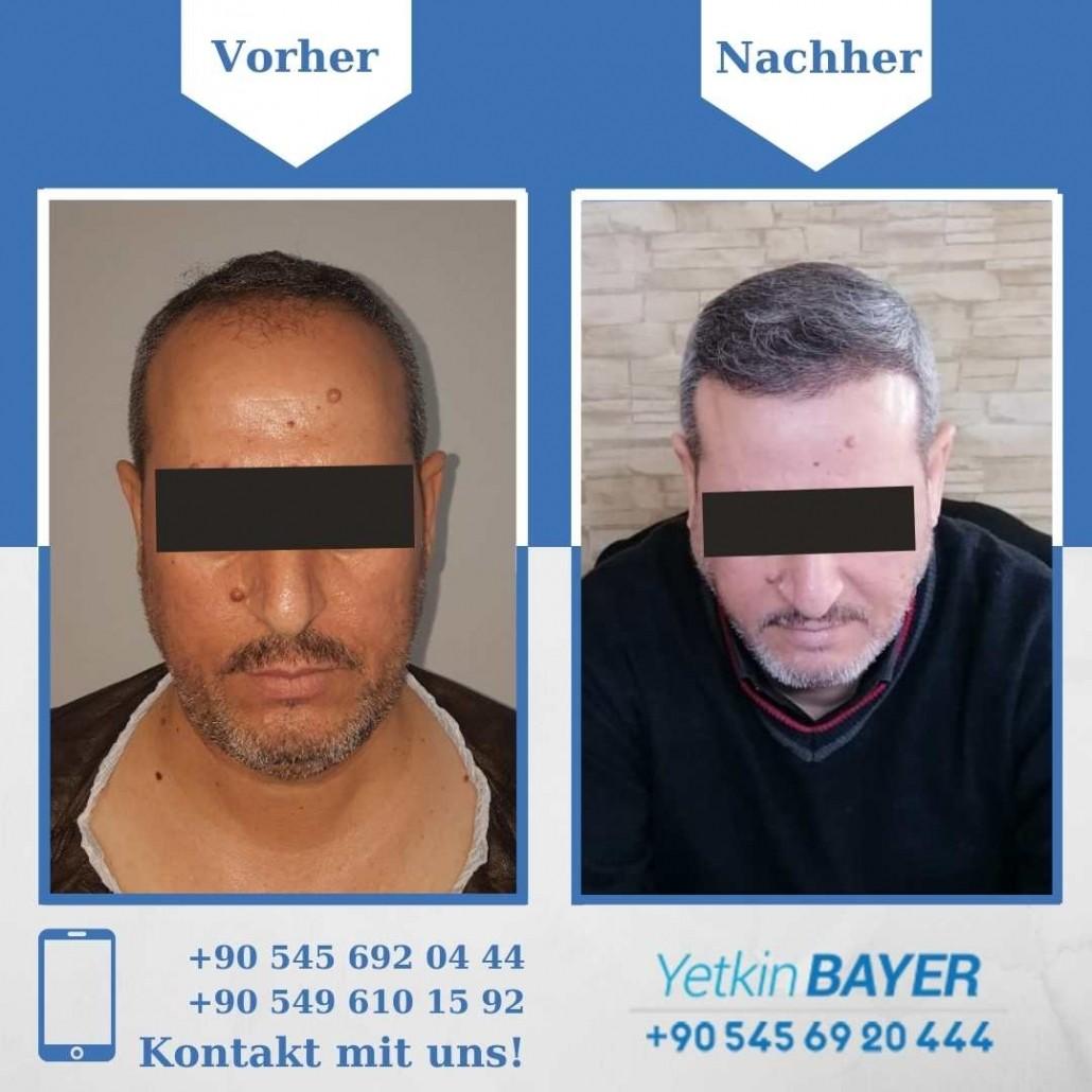 Haartransplantation Türkei Vorher Nachher Ergebnisse 34