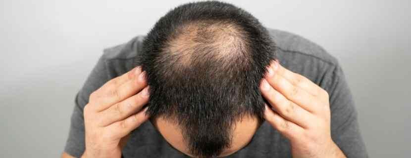 Saç Sıklaştırma Ekimi
