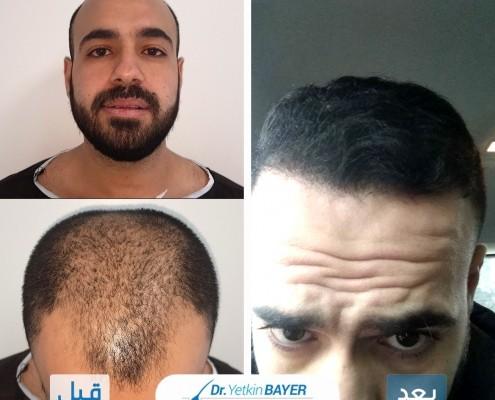 زراعة الشعر في تركيا: تكلفة العملية 2020 ونصائح لاختيار أفضل مركز 14