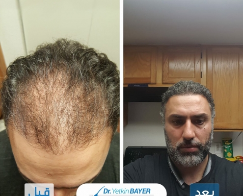 تكلفة زراعة الشعر 2020 10