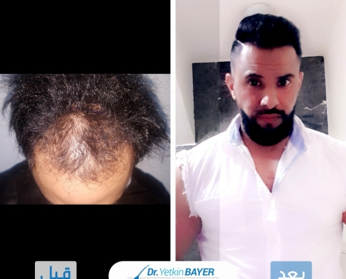 تكلفة زراعة الشعر 2020 9