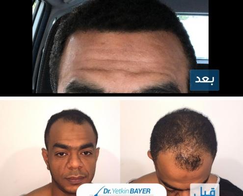 تكلفة زراعة الشعر 2020 8
