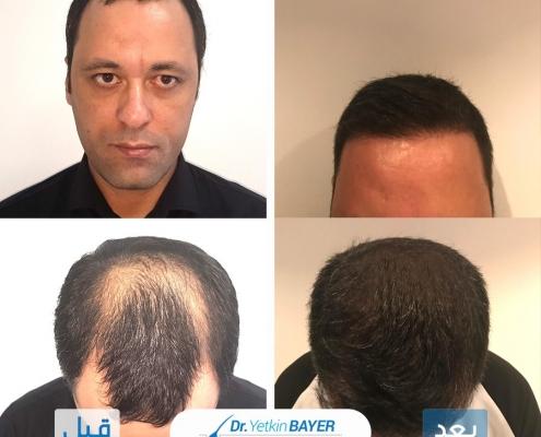 تكلفة زراعة الشعر 2020 7