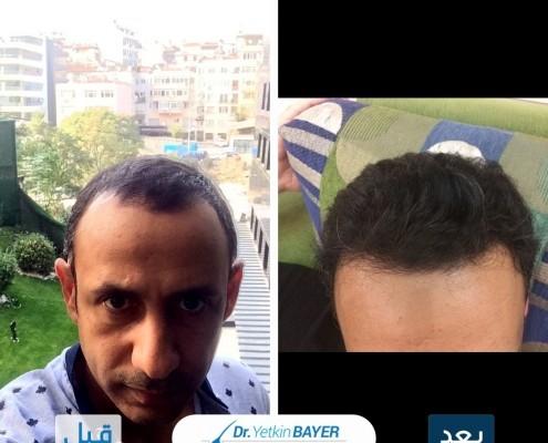 زراعة الشعر في تركيا: تكلفة العملية 2020 ونصائح لاختيار أفضل مركز 7