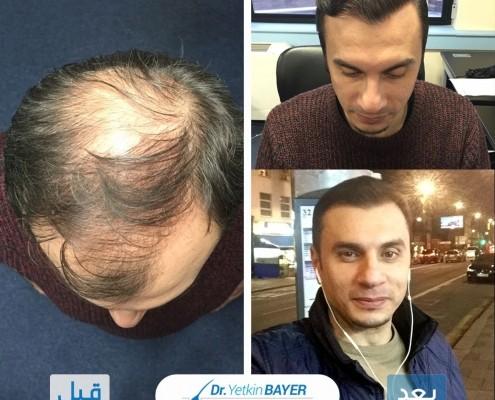 تكلفة زراعة الشعر 2020 5