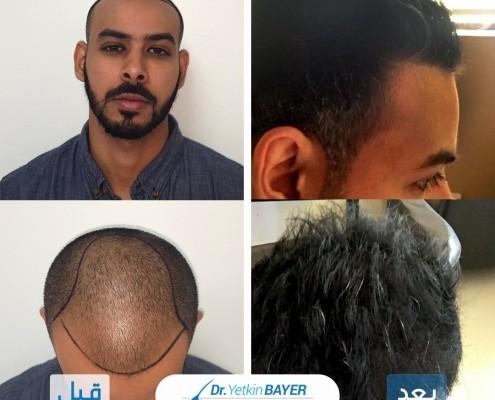 تكلفة زراعة الشعر 2020 3