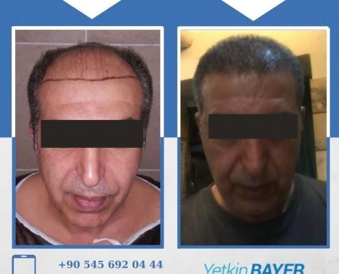 Photos avant & après une greffe de cheveux 1