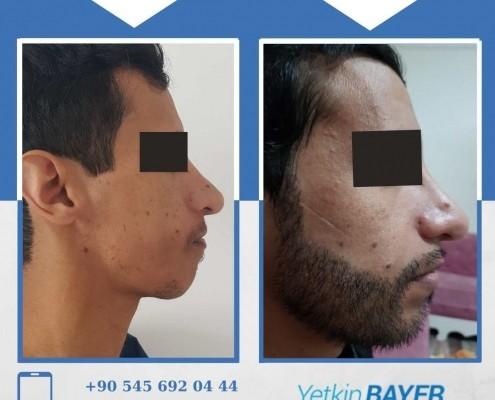 Photos avant & après une greffe de cheveux 10