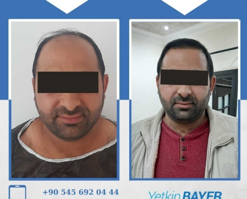 Photos avant & après une greffe de cheveux 11
