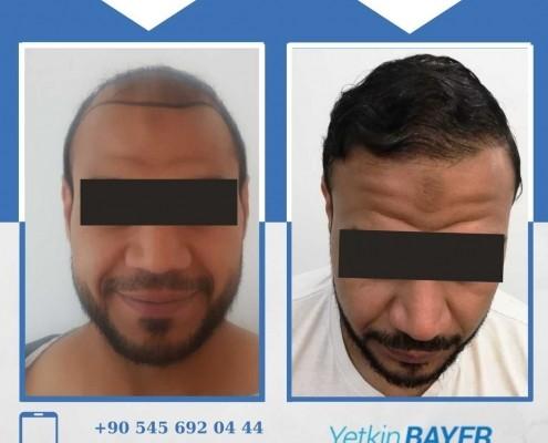 Photos avant & après une greffe de cheveux 12