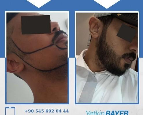 Photos avant & après une greffe de cheveux 14