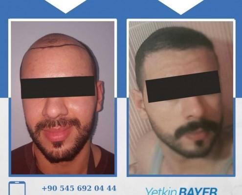 Photos avant & après une greffe de cheveux 15
