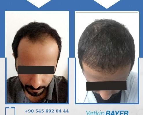 Photos avant & après une greffe de cheveux 16