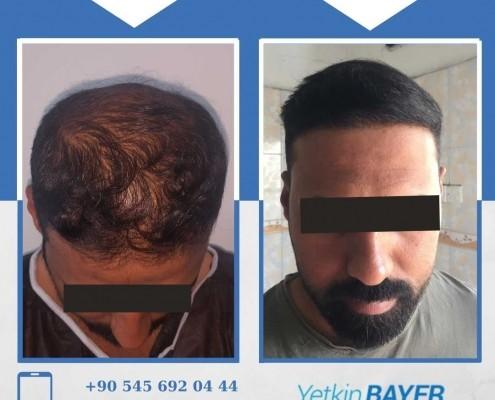 Photos avant & après une greffe de cheveux 17