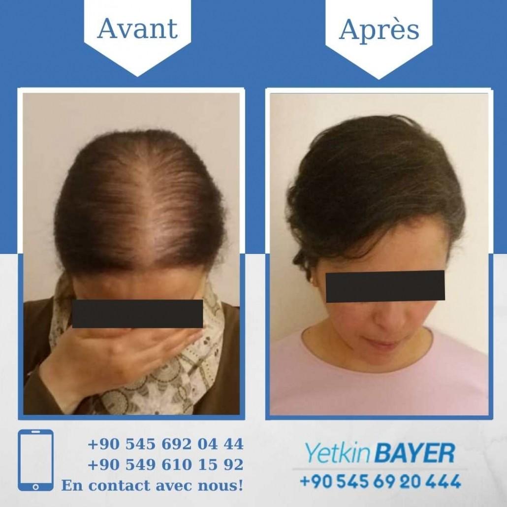 La greffe de cheveux pour femmes en Turquie 4
