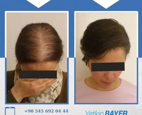 Photos avant & après une greffe de cheveux 18