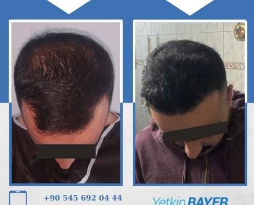 Photos avant & après une greffe de cheveux 19