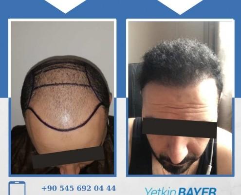 Photos avant & après une greffe de cheveux 2
