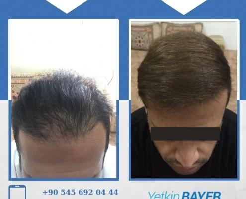 Photos avant & après une greffe de cheveux 20