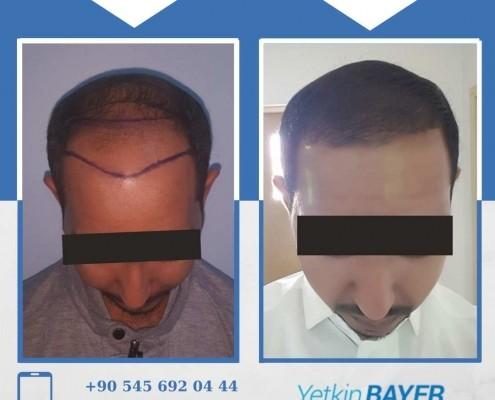 Photos avant & après une greffe de cheveux 21