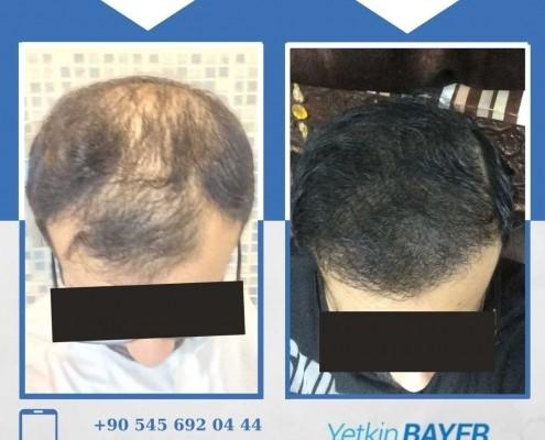 Photos avant & après une greffe de cheveux 22