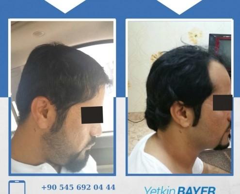 Photos avant & après une greffe de cheveux 23