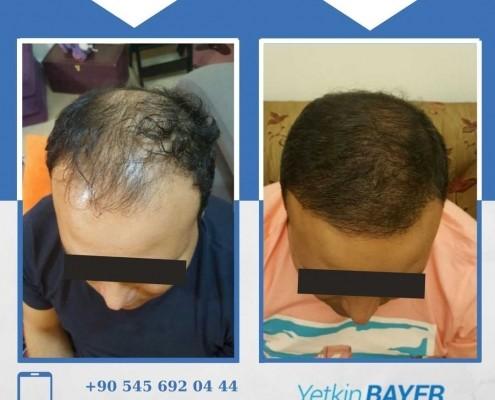 Photos avant & après une greffe de cheveux 24