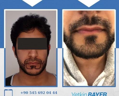 Photos avant & après une greffe de cheveux 25