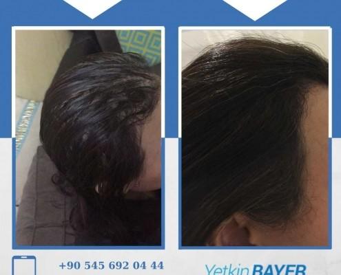 Photos avant & après une greffe de cheveux 26