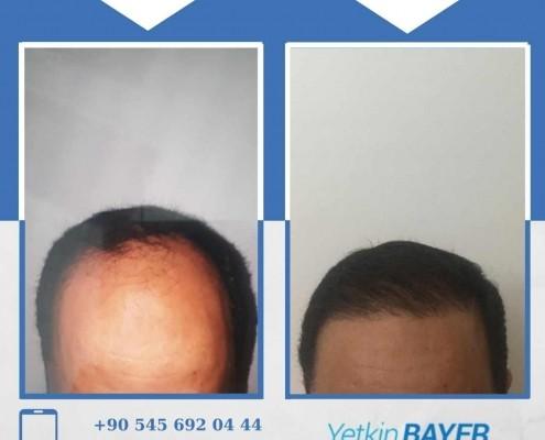 Photos avant & après une greffe de cheveux 27
