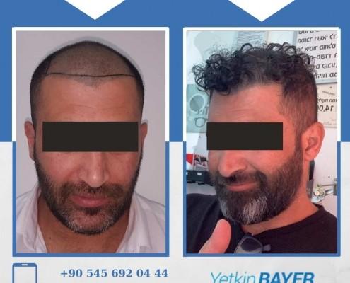 Photos avant & après une greffe de cheveux 28