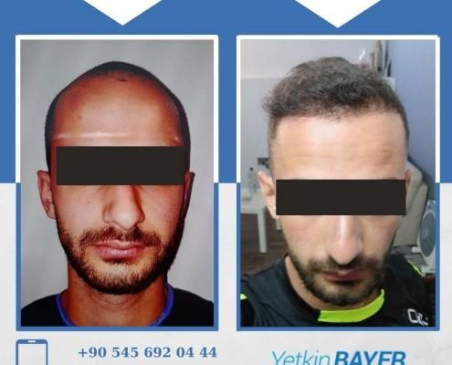 Photos avant & après une greffe de cheveux 29