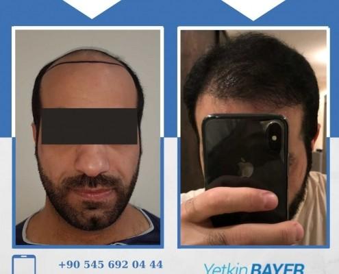 Photos avant & après une greffe de cheveux 30