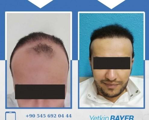 Photos avant & après une greffe de cheveux 31
