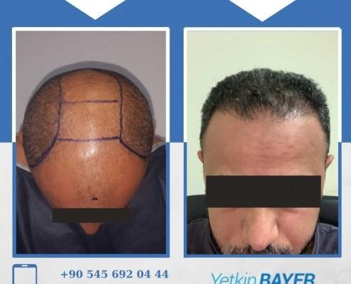Photos avant & après une greffe de cheveux 32