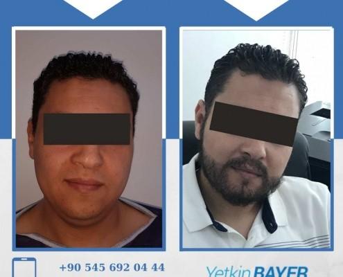 Photos avant & après une greffe de cheveux 33