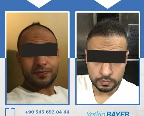 Photos avant & après une greffe de cheveux 34