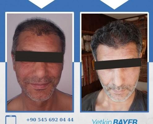 Photos avant & après une greffe de cheveux 4
