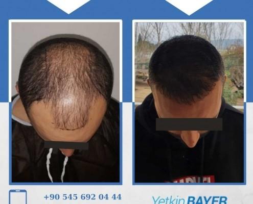 Photos avant & après une greffe de cheveux 35