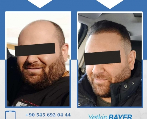 Photos avant & après une greffe de cheveux 5