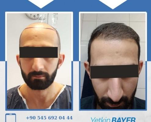 Photos avant & après une greffe de cheveux 6