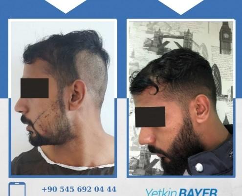 Photos avant & après une greffe de cheveux 7