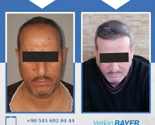 Photos avant & après une greffe de cheveux 8